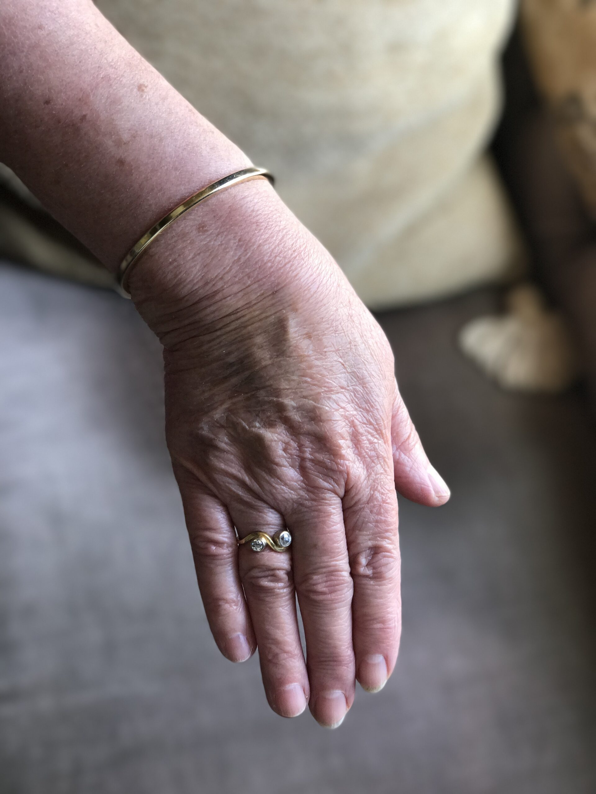 A mature white woman's right hand, back upwards with fingers straight out and closed, wearing a gold ring with two diamonds